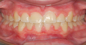 Anterior Crossbite After Treatment