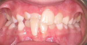 Anterior Crossbite Before Treatment