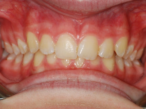 Deep Bite Before Treatment